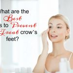 What are the best ways to prevent and treat crow's feet?